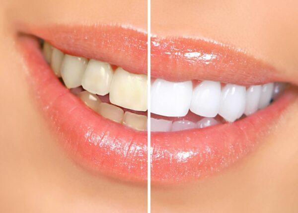 tandblegning effektivt